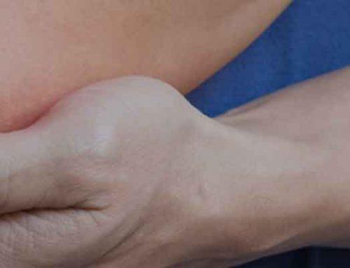 درمان پینه آرنج